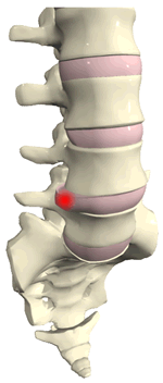Chiropractic and disc herniation